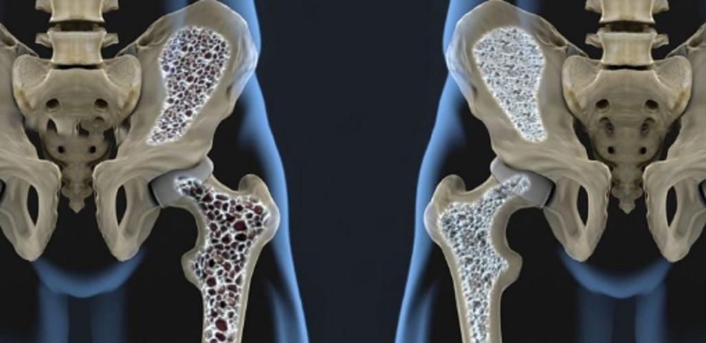 Density - osteoporosis