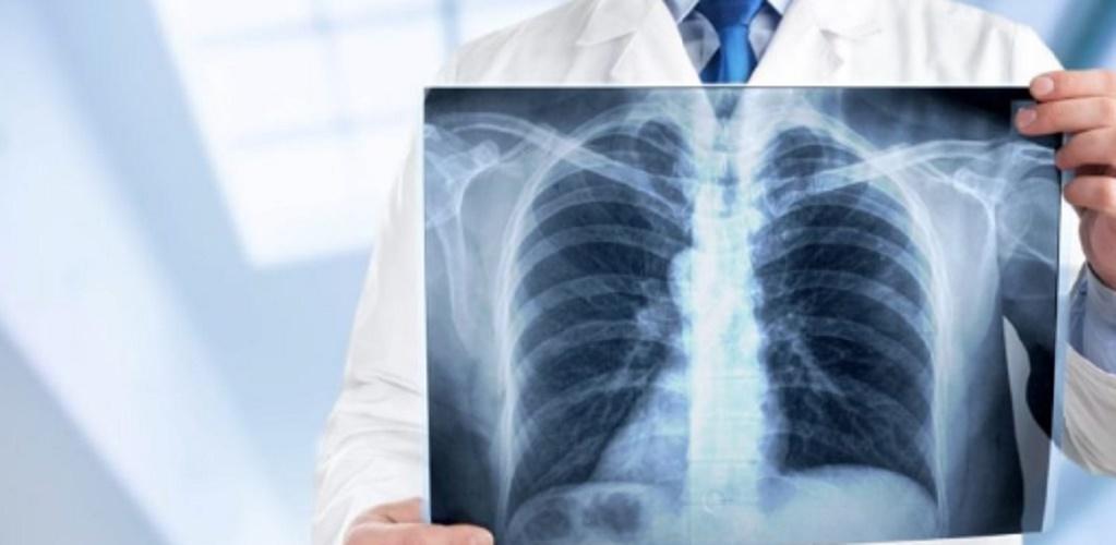 electromagnetic spectrum x-ray uses medicine