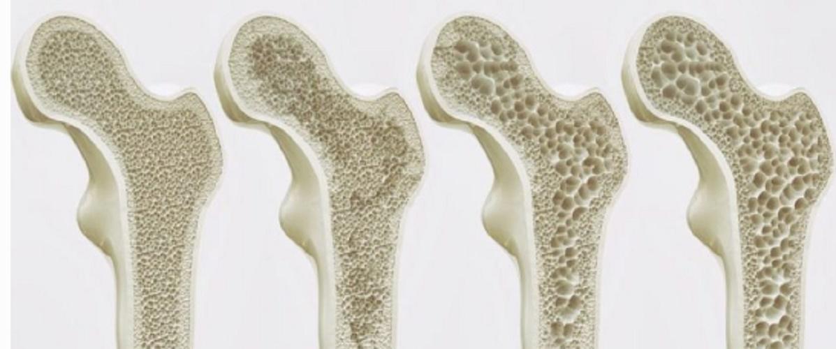 bones osteoporosis diseases