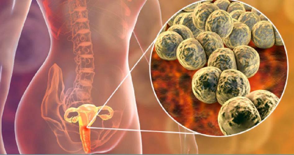 Gonorrhea - STD