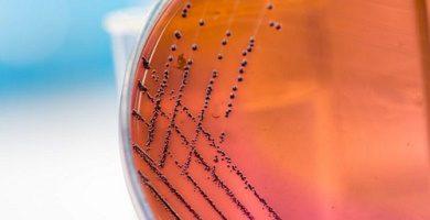 anaerobic respiration anaerobic bacteria