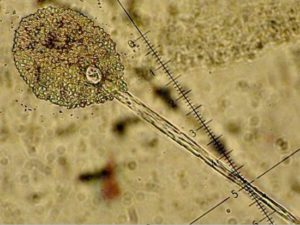 Microscopic view of the sporangium of a fungus